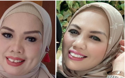 Bukti Elly Sugigi Kian Cantik, Foto Sebelum vs Usai Potong Gigi