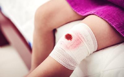Jangan Percaya Mitos, Ini Saran Dokter Saat Terjadi Luka Berdarah
