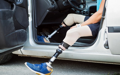 Disabilitas Dewasa Perhatikan 4 Hal Ini Jika Ingin Mengemudi