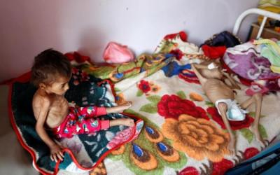 Gawat, Perang Yaman Buat 16 Juta Orang Bisa Mati Kelaparan