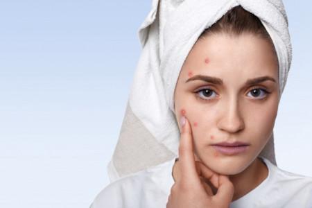 4 Produk Skin Care Direkomendasikan untuk Mengatasi Bekas Jerawat