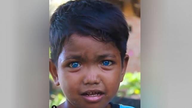 Bocah bermata biru dari Sulawesi Tenggara langsung jadi viral (Foto : Istimewa)