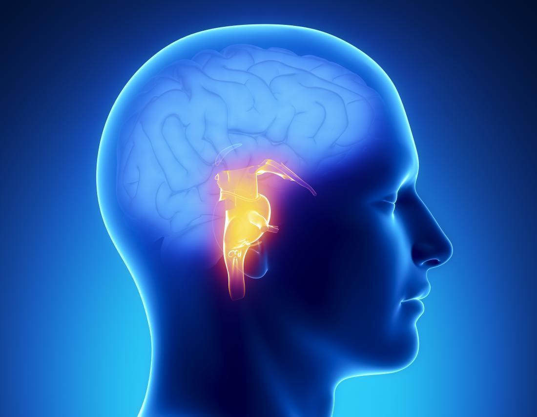 Ilustrasi stroke. (Medical News Today)