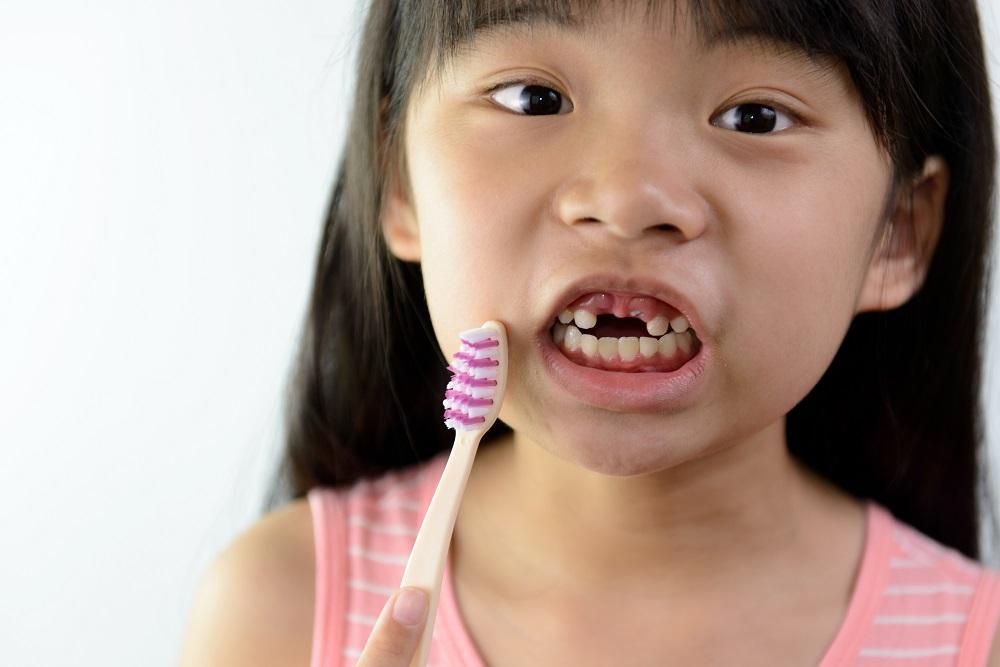 Bagaimana Menjaga Kebersihan Gigi Anak Berdasarkan Usia?