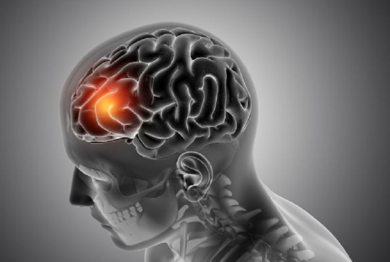ilustrasi: perubahan otak pada pasien yang terinfeksi virus corona (foto : freepik)