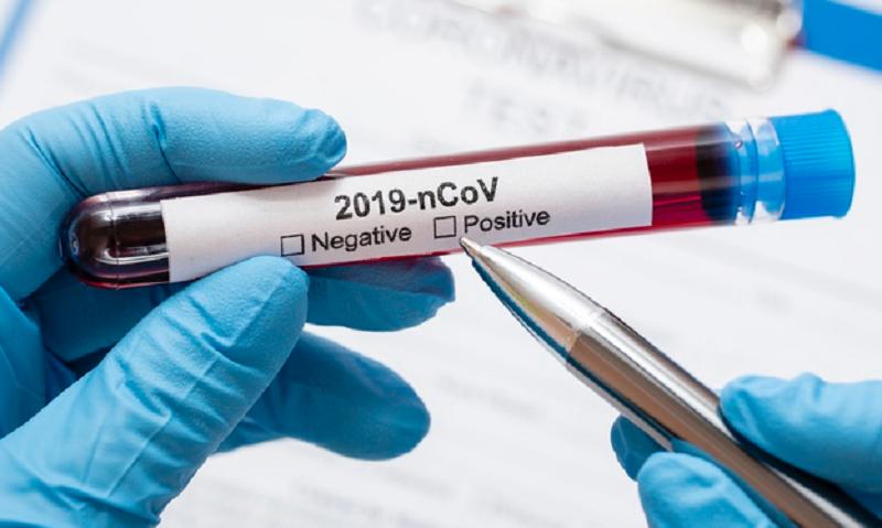 China Sukses Uji Coba Vaksin Virus Corona, 99 Persen Manjur