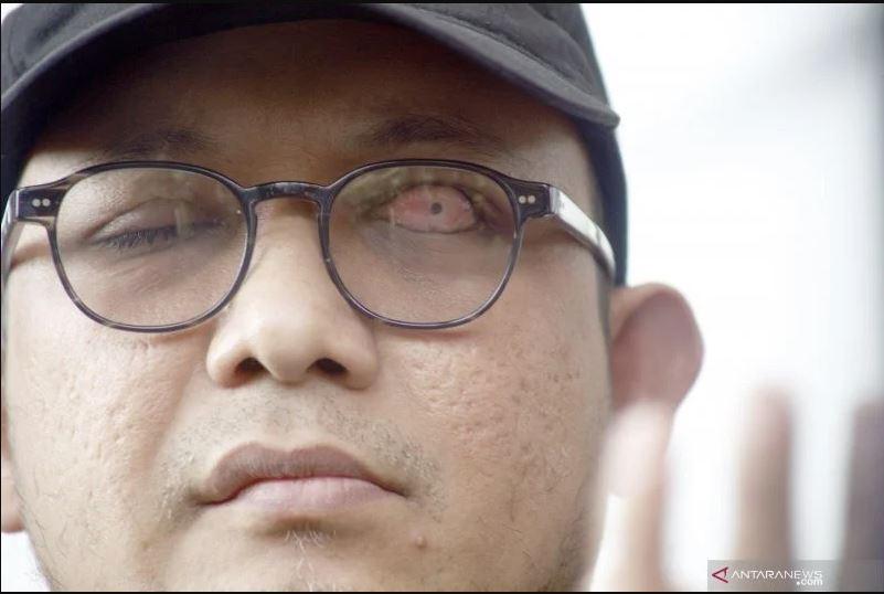 Penyidik Senior KPK Novel Baswedan. (Foto: Antara)