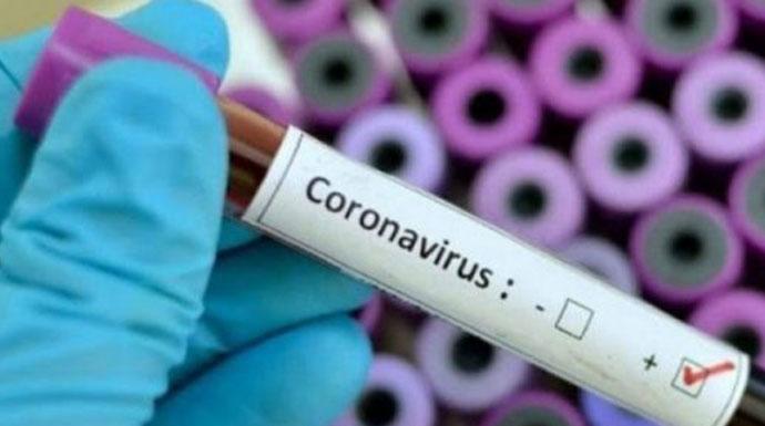 Hadapi Gelombang Kedua Virus Corona, Negara Ini Kapok Lockdown
