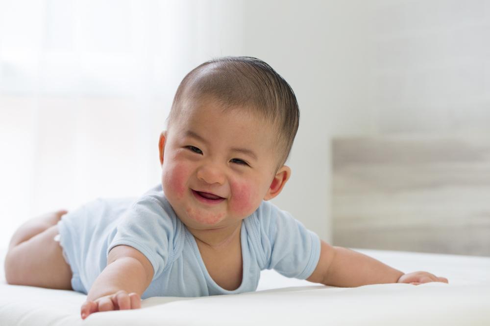 Bunda, Ini 4 Penyakit Kulit pada Bayi yang Sering Terjadi. Foto: Hellosehat