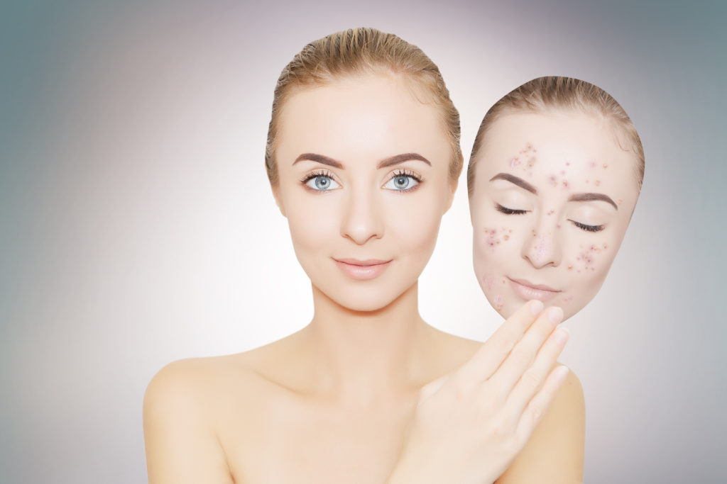 Ilustrasi kulit wajah cerah. Foto: Shutterstock