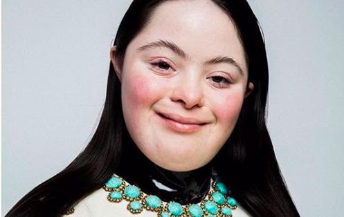 Ellie Goldstein, remaja down syndrome yang jadi model Gucci Beauty. Foto: IG @elliejg16_zebedeemodel