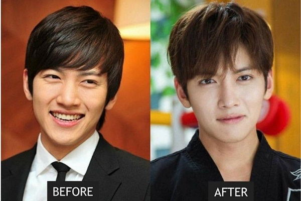 Bikin Shock, 5 Potret Aktor Korea Sebelum dan Sesudah Oplas