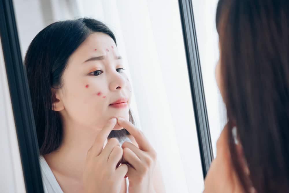 Bukan Cuma Jerawat, Kenali 3 Masalah yang Merusak Kulit Wajah
