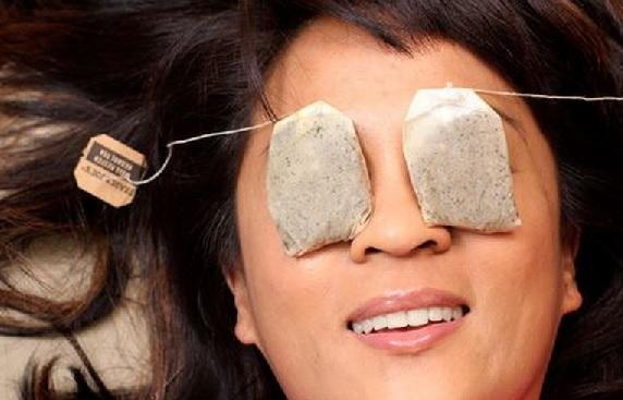 7 Cara Ampuh Hilangkan Kantung Mata Dengan Cepat dan Alami (Foto: Shutterstock)