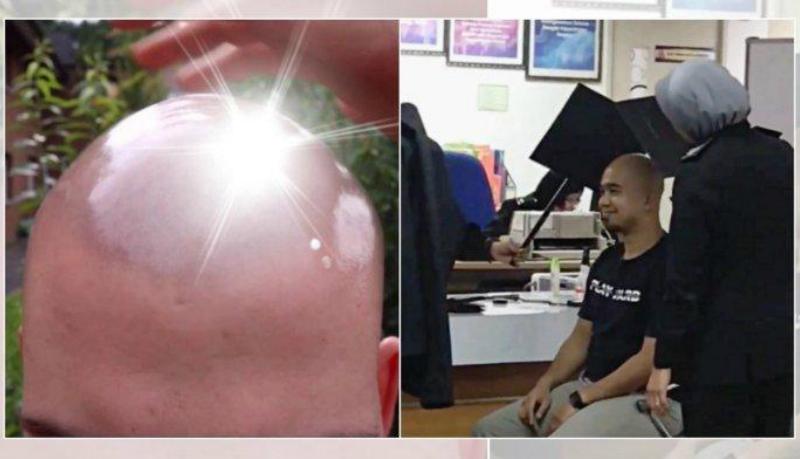 Pria botak di Malaysia merepotkan petugas Imigrasi sebab kepalanya berkilau ketika difoto (Foto : Istimewa)